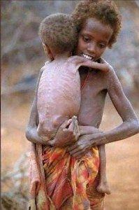 Fome na África 5